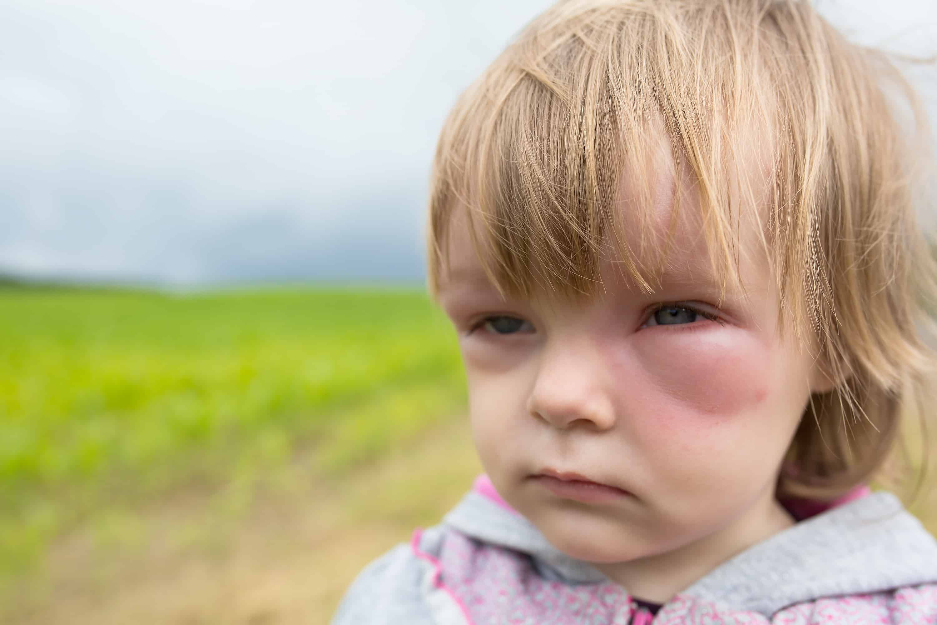 Severe food allergy reactions are scary in children.